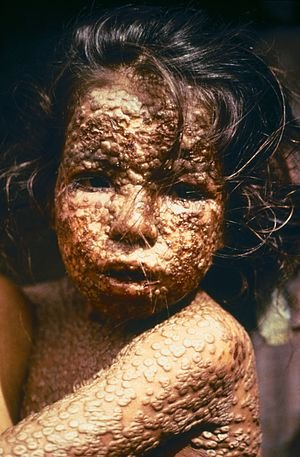 300px-child_with_smallpox_bangladesh2538208134957472397.jpg